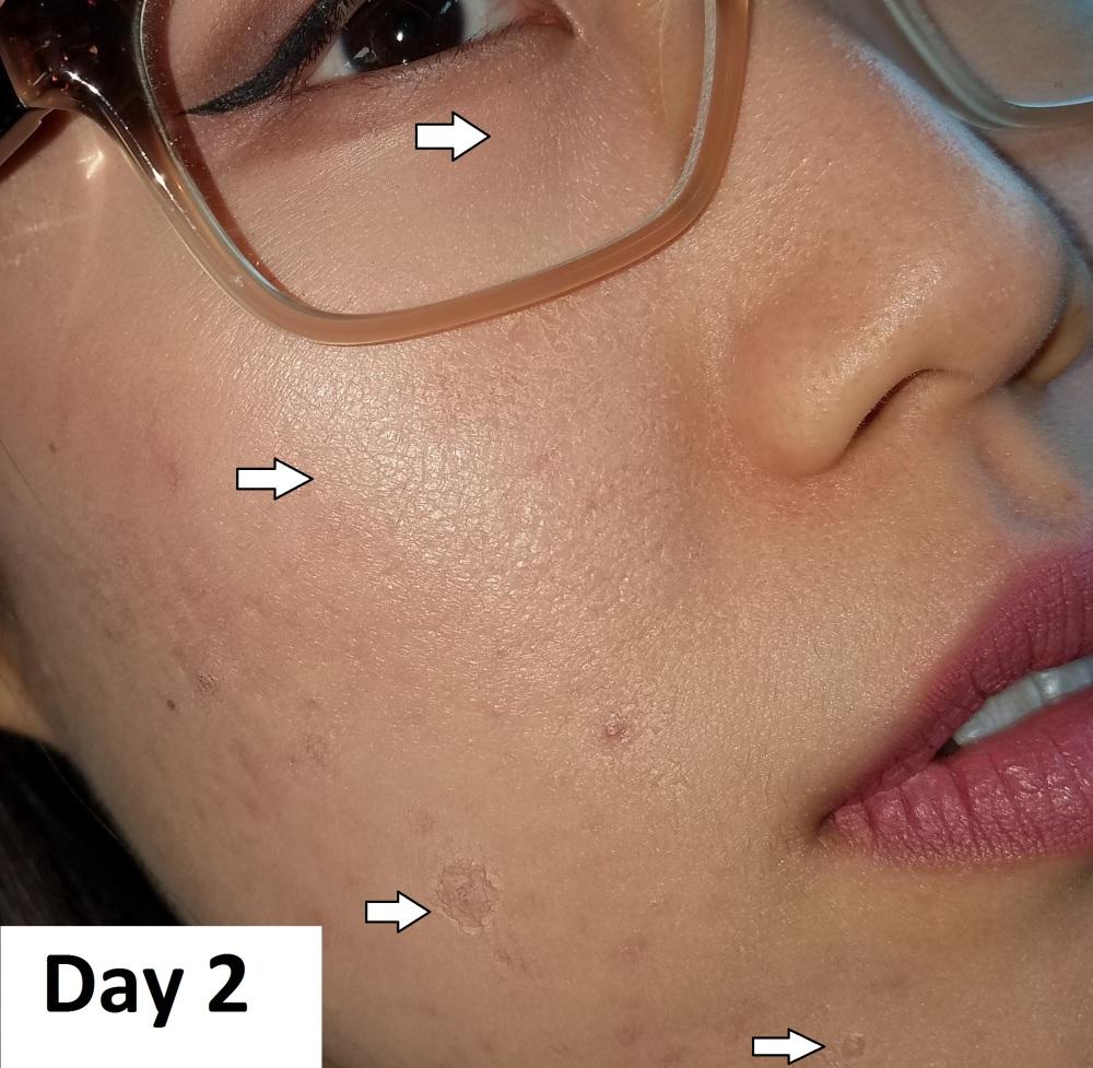 3. Day 2.jpg