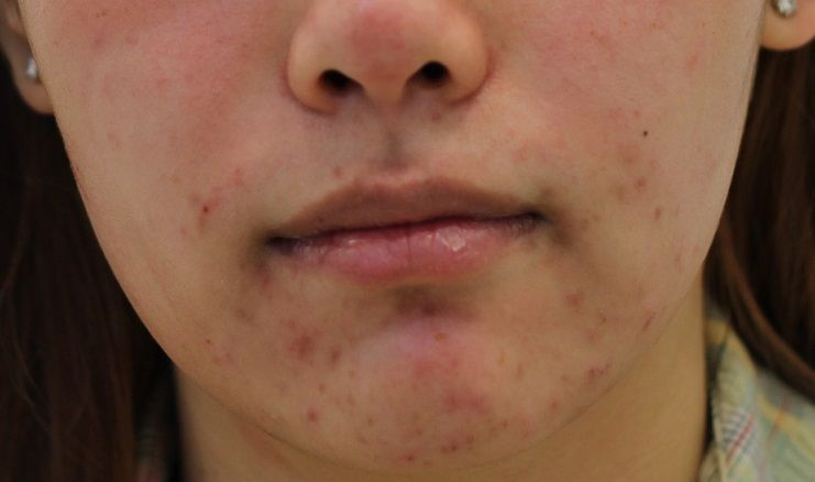 Acne-around-mouth-and-Chin.jpg